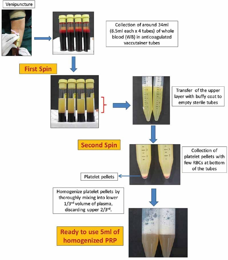 Platelet Rich Plasma Or Prp Preparation Procedure
